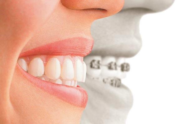 smilingtek-diseño-de-sonrisa-contactanos-tratamientos-ortodoncia-invisible-1a