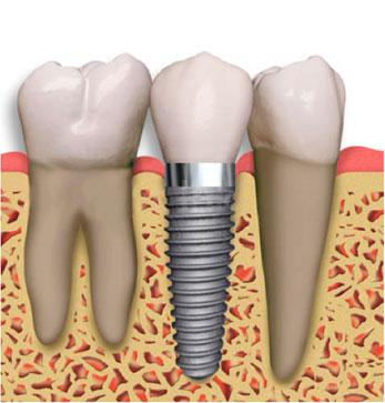 smilingtek-diseño-de-sonrisa-contactanos-tratamientos-implantes